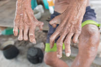Hansen's disease, hands of old man suffering from leprosy, amputated hands. Karen Thornber describes the disease as highly stigmatised in many societies, despite its being completely curable and not very contagious. Photograph: Shutterstock