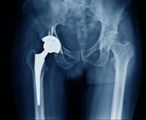X-ray of a hip implant. Photo: Shutterstock