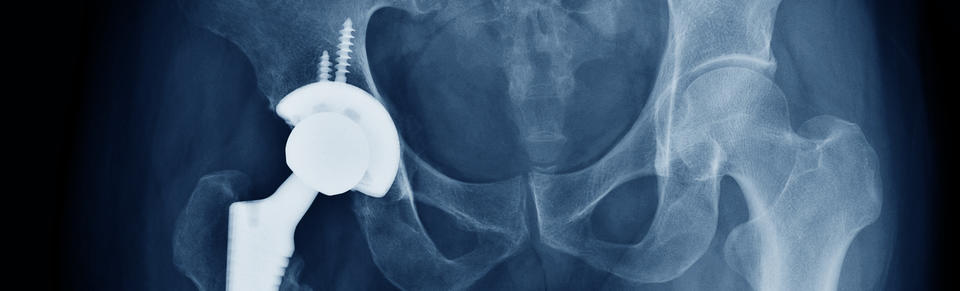 X-ray of a hip implant. Photo: Shutterstock.